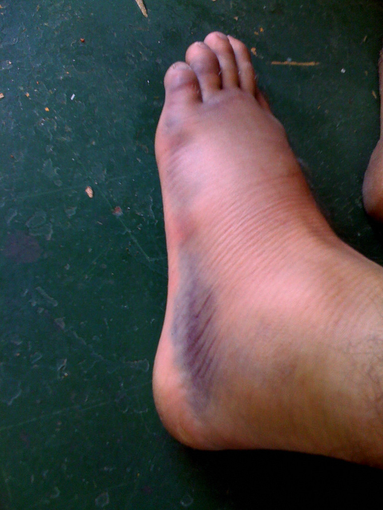 swollen ankle purple