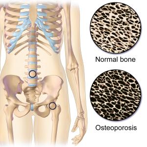 bone loss, osteoporosis