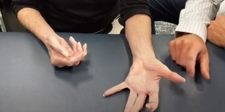 How to Improve Your Hand Arthritis Without Surgery